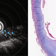 Left: Endoscopic OCT imaging in a severely diseased human carotid artery. Cross-sectional endoscopic OCT image. Right: Masson's trichrome staining of adjacent sections; blue arrows indicate thrombus that appears to contain fibrin, platelets, and cellular debris.